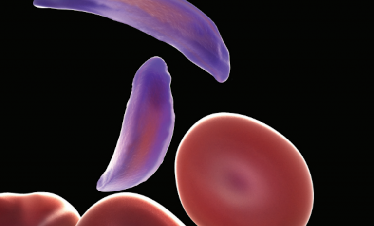Gene-edited supercells to cure sickle cell anemia
