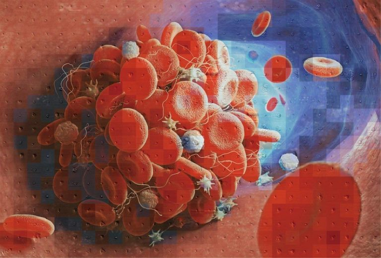New machine learning technology helps in identifying blood clots